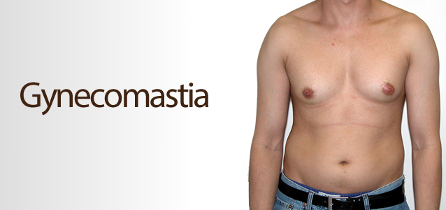 male breast enlargement