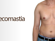 Enlarged Breasts in Males
