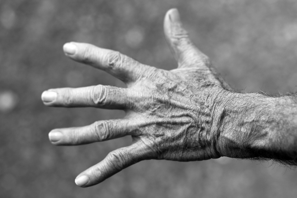 Struggling to Work with Rheumatoid Arthritis? What Your Employer Should Know